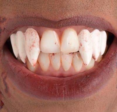 Multi Vampire Fangs